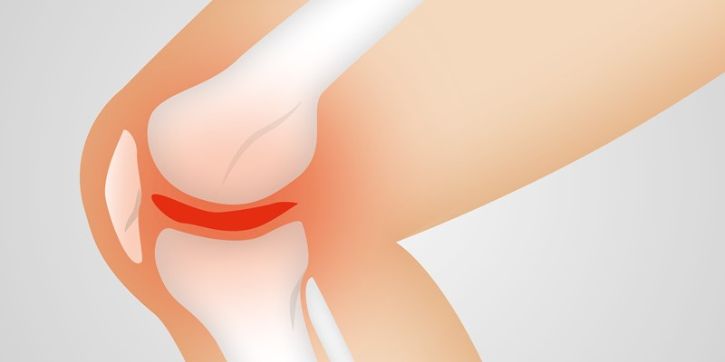 Surgery for Early Osteoarthritis